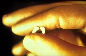 аборт 6 недель ножки